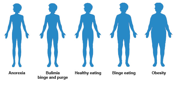understanding anorexia and bulimia nervosa Eating disorder statistics (nd eating disorders: understanding anorexia that perfectionism per se is not a useful construct in understanding anorexia nervosa.
